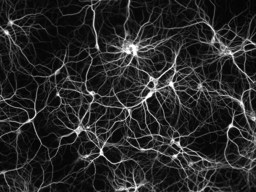 brain neurons compressed.jpg