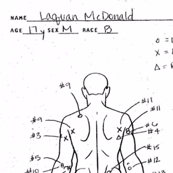 Autopsy of Laquan McDonald