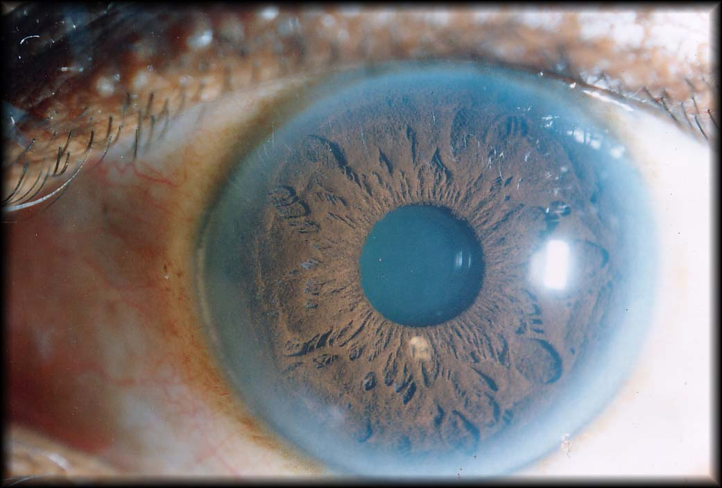 An Iris showing signs of Arterial-plaquing