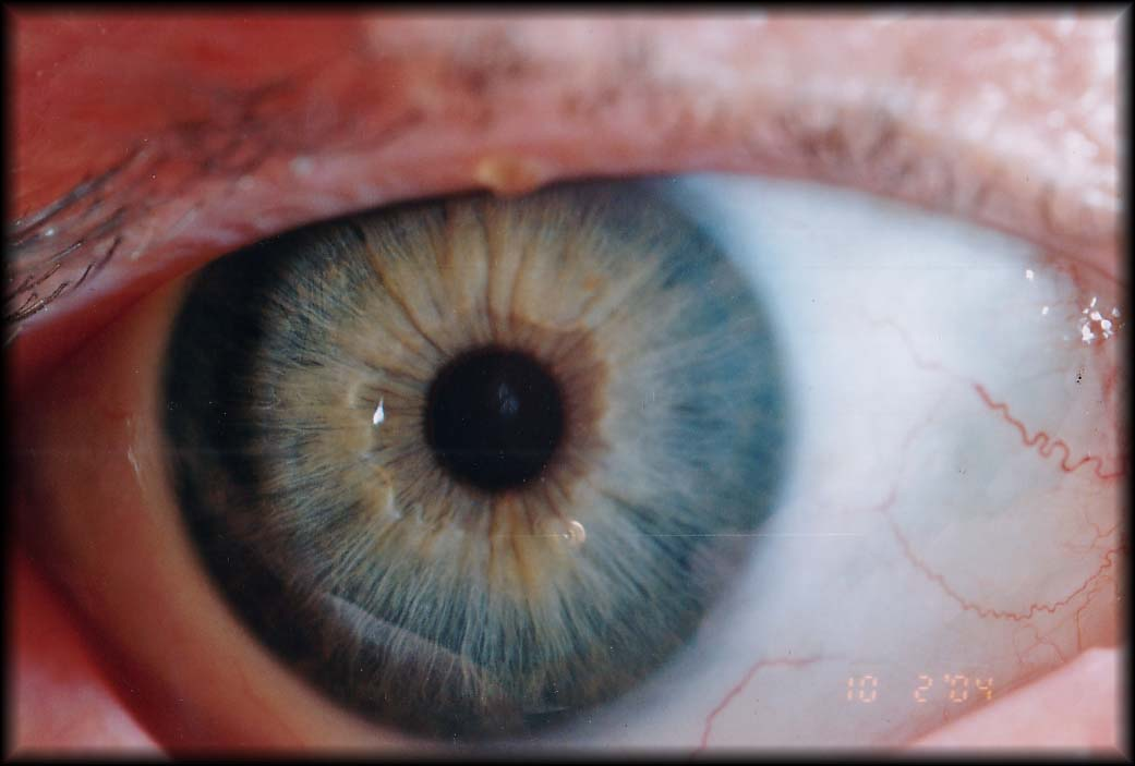 Dark area around the pupil indicating an under acid stomach