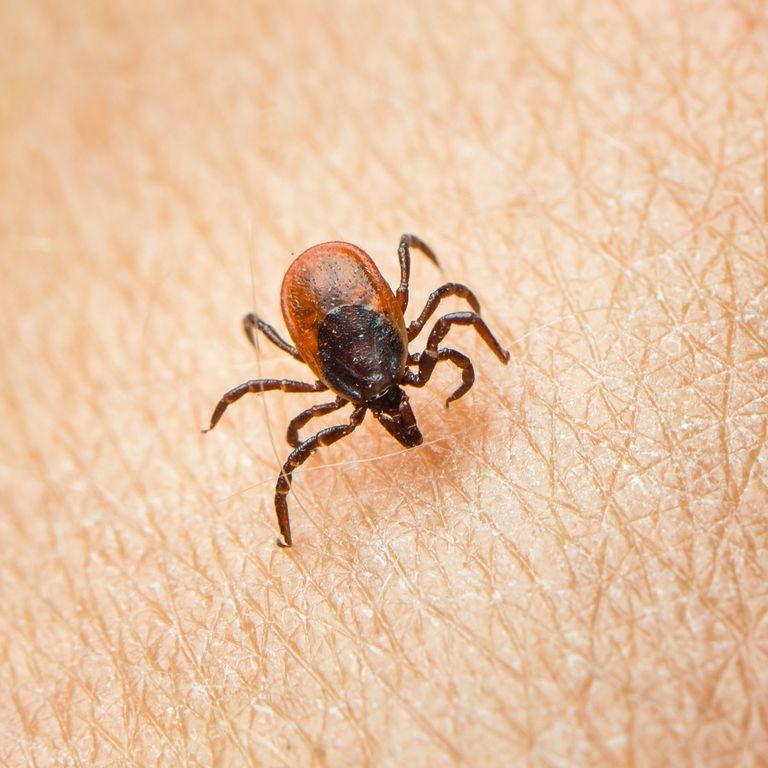 tick-parasit-on-a-human-skin-royalty-free-image-511737040-1557956045.jpg
