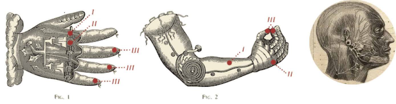 Placement of Insertable devices