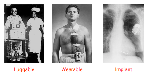 Evolution of the Pacemaker