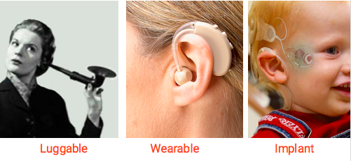 Evolution of hearing aids