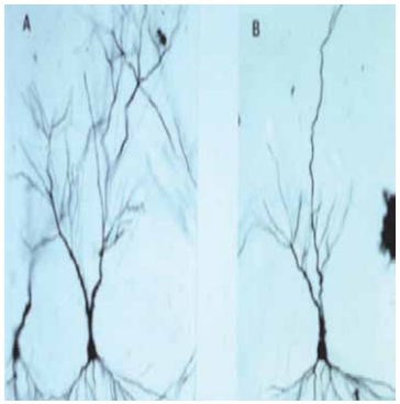 Certain brain nerve cells, (called dendrities), actually shrink in size when exposed to too much glutamate. You can see the changes from A (no glutamate exposure), to B (after too much glutamate exposure) of these dendrities. It's a bit like a tree shedding its leaves in autumn. This is happening in a part of your brain, called the hippocampus.