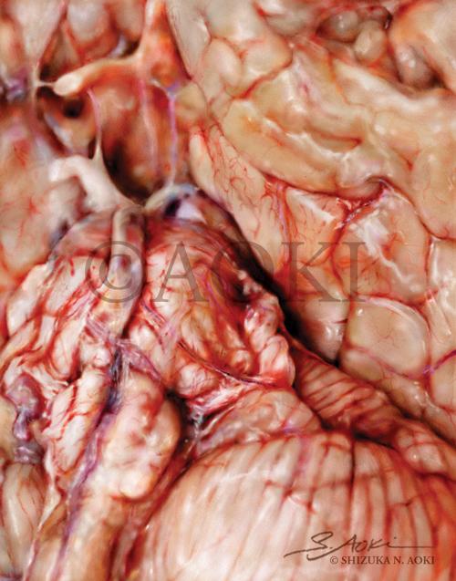 Digital painting of the brain (focus on the Circle of Willis) Medium: Digital  ©Aoki | Anatomize Medical Media Inc.