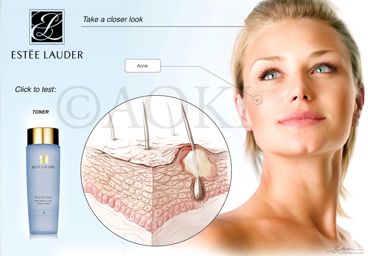 Cross-section of skin showing development of acne Medium: Graphite and digital (Background: photograph) ©Aoki | Anatomize Medical Media Inc.