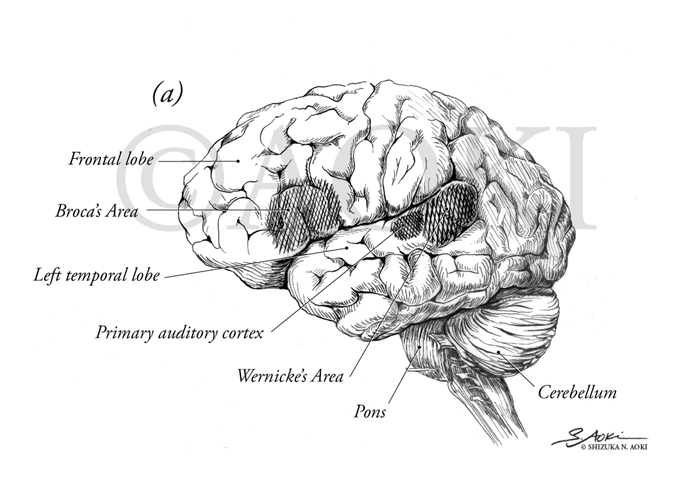 Left lateral view of the brain highlighting areas of brain responsible of hearing and speech. Medium: Pen & Ink ©Aoki | Anatomize Medical Media Inc.
