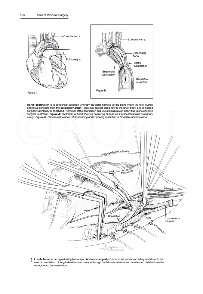 Surgical Repair of Aortic Coarctation (part I) Medium: Pen & Ink and digital ©Aoki | Anatomize Medical Media Inc.