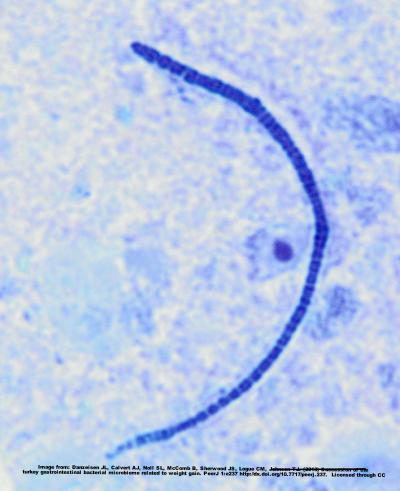 Example of a segmented filamentous bacteria.