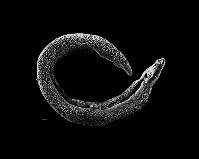 Schistosoma  parasite worm, otherwise known as a blood fluke.