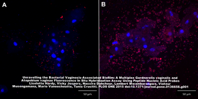 Confocal laser scanning images with 400x magnification of   G  .  vaginalis   biofilm in 2 vaginal slides (A and B) in a superimposed image: vaginal epithelial cells in blue and   G  .   vaginalis   specific PNA-probe in red. A: vaginal sample with dispersed bacteria; B: vaginal sample with bacteria in biofilm.