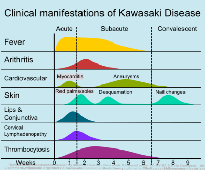Clinical manifestations and time course of Kawasaki disease