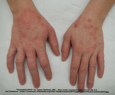 A moderate case of hand dermatitis
