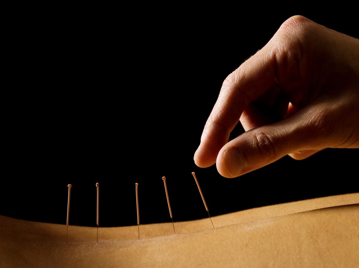 acupuncture hand:needle.jpg