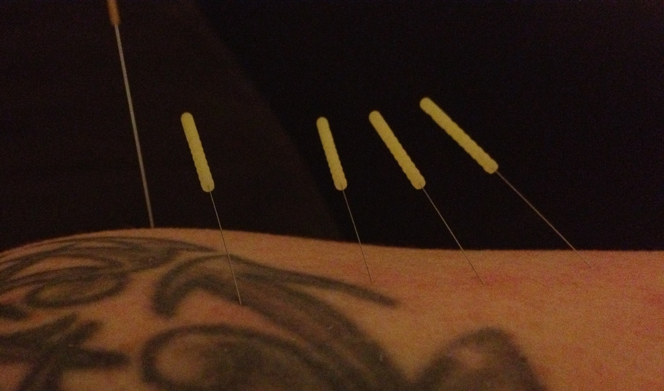 Image of acupuncture treatment (magnified).