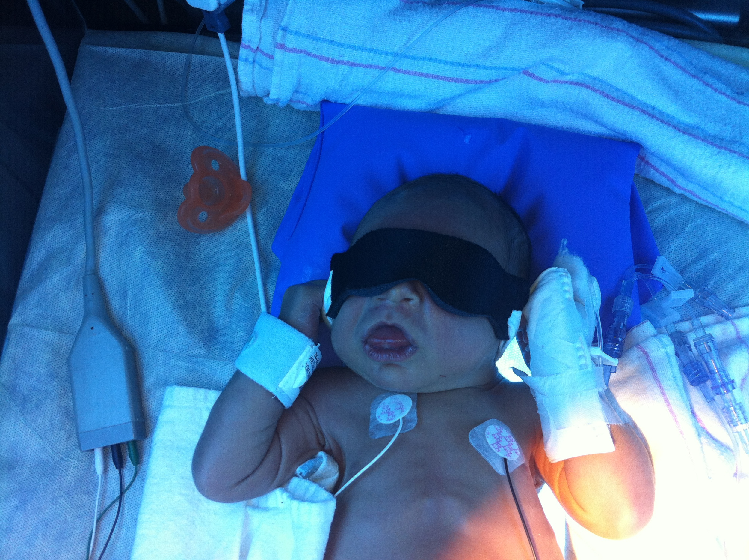 NICU  B eckwith Wiedemann Syndrome