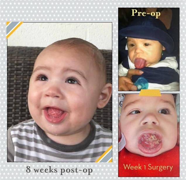Tongue reduction surgery