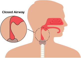 Obstructive Sleep Apnea   Patients with obstructive sleep apnea experience the collapsing of the airway during sleep. This causes a decrease or stop in airflow during sleep, despite an ongoing effort to breathe .
