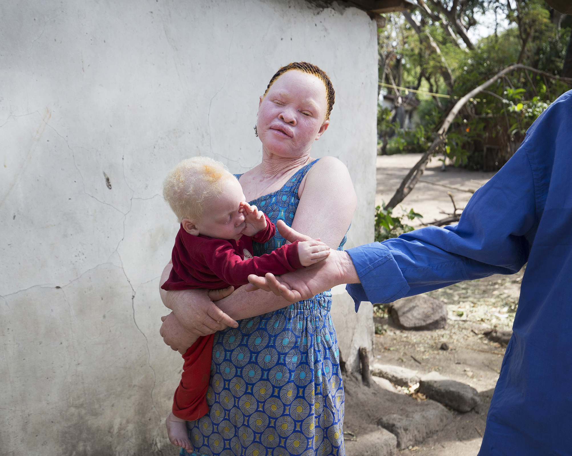 In many communities dangerous myths that 'children with albinism were produced because the ghost of colonialists impregnated their mothers' lead to husbands abandoning their wives and family's. Babies are routinely slaughtered at birth; those who survive often endure years of abuse.