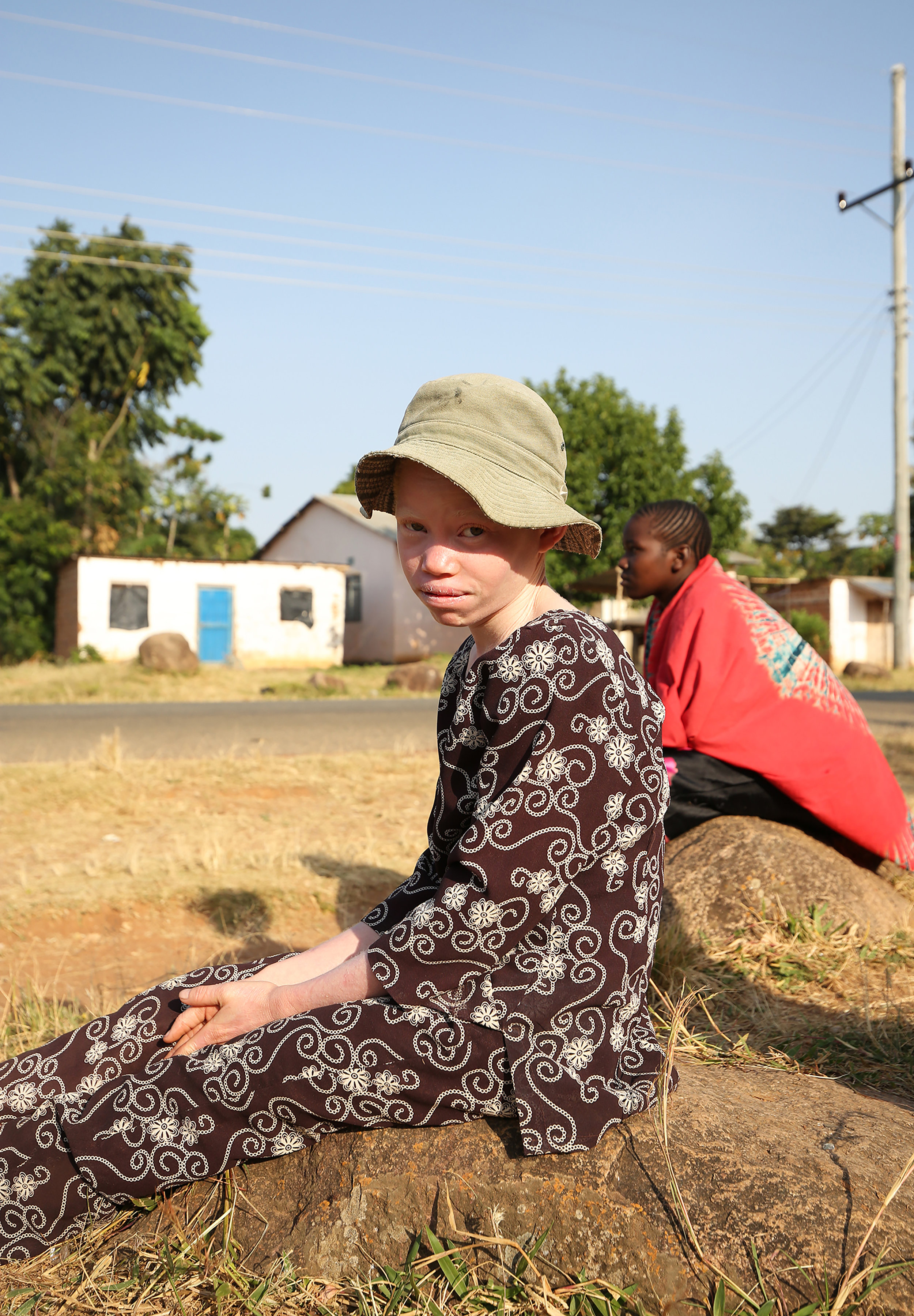 Myths and misconceptions around albinism cause mockery and bullying.