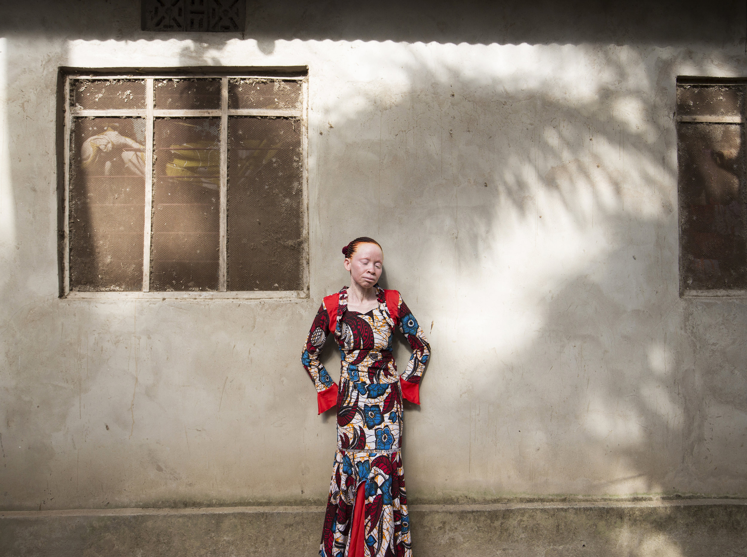 The bodies of people with albinism are frequently said to possess magical properties, able to cure disease or deliver fortune. Sex with a woman with albinism is thought to cure AIDS which in some communities leads to rape.
