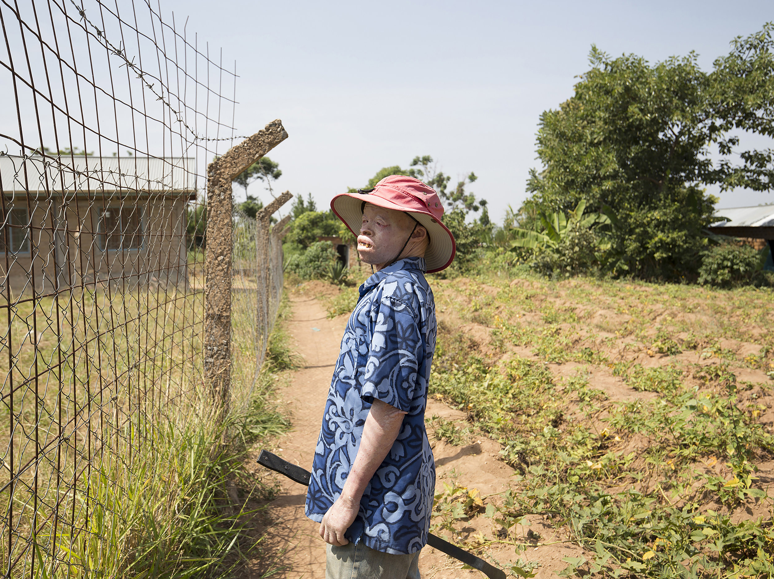 Tanzania's government has responded by placing hundreds of people with albinism in protectorate centres around the country for their safety. These centres are understaffed, with poor sanitation and inadequate educational infrastructure.