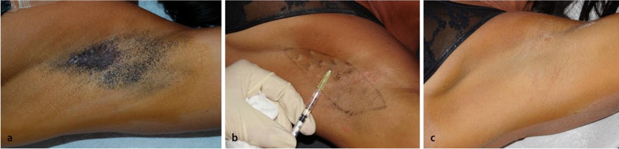 a) Der Jod-Stärke-Test, um die stark-schwitzenden Gebiete zu verdeutlichen. b.) Das Spritzen von Botulinumtoxin. Per Achsel erfolgen in der Regel 10-20 Einstiche c.) Der Jod Stärke-Test nach 4 Wochen. Schweißverminderung liegt durchschnittlich bei 83,5%.