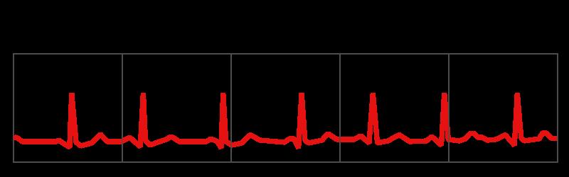 Beim gesunden Menschen variiert die Frequenz des Herzschlages. Der Abstand zwischen zwei Herzschlägen variiert.