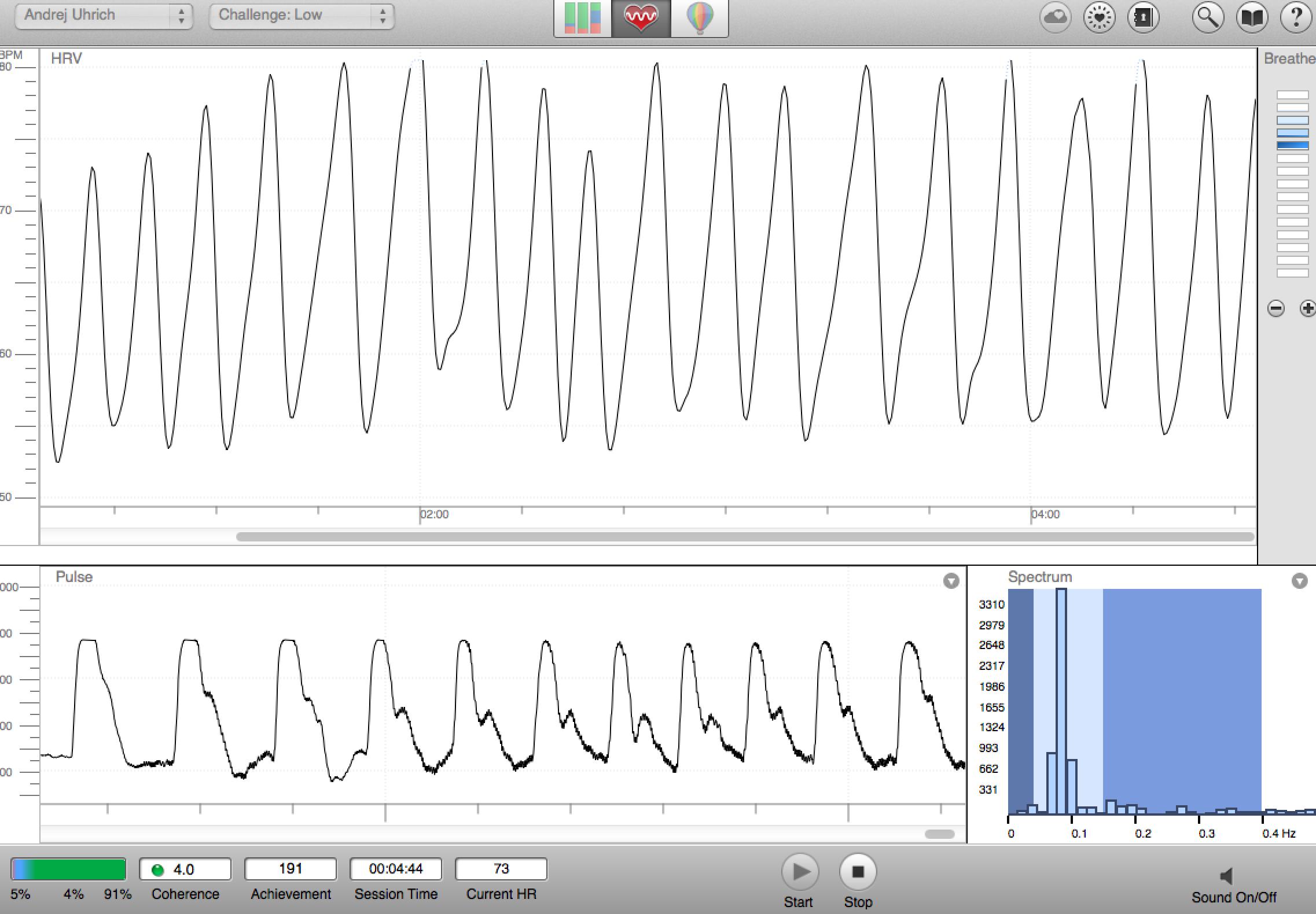Oben wird die sogenannte Herz-Kohärenz angezeigt. Unten ist mein Pulse. Rechts unten wird das elektromagnetische Spektrum berechnen. Dies ist meine kohärente Herzmelodie.