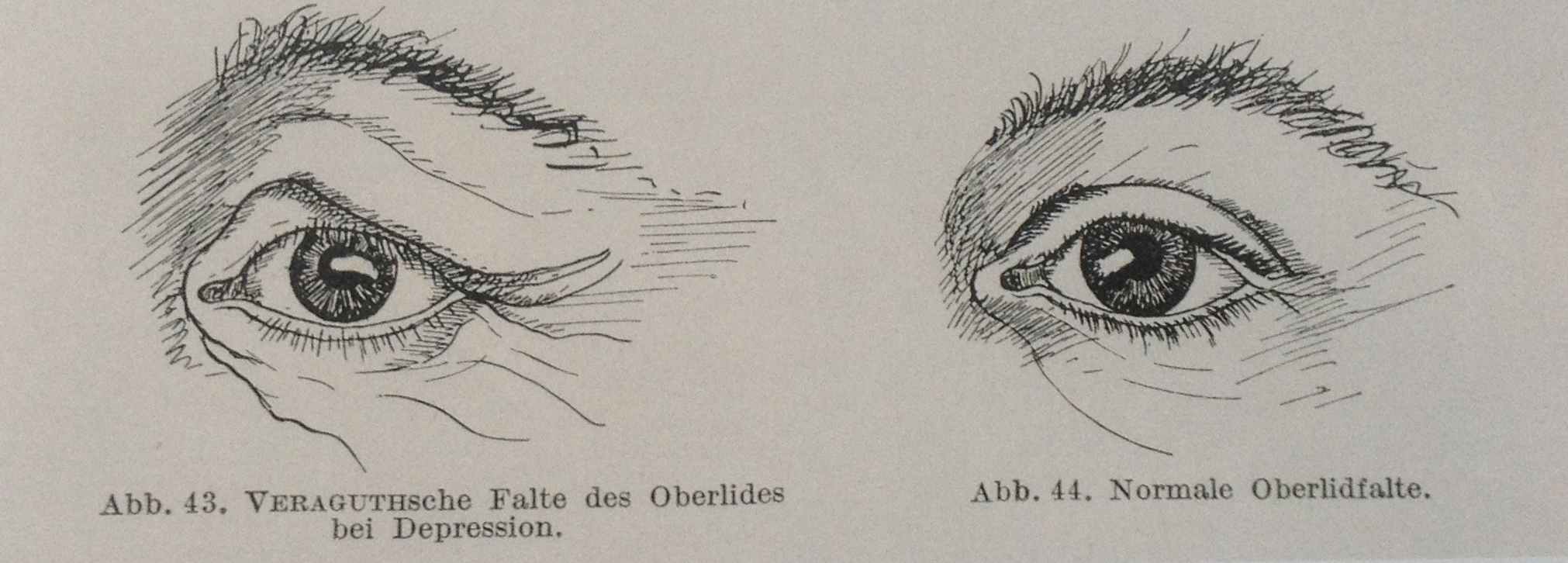 Eugen Bleuler, Lehrbuch der Psychiatrie, 1916