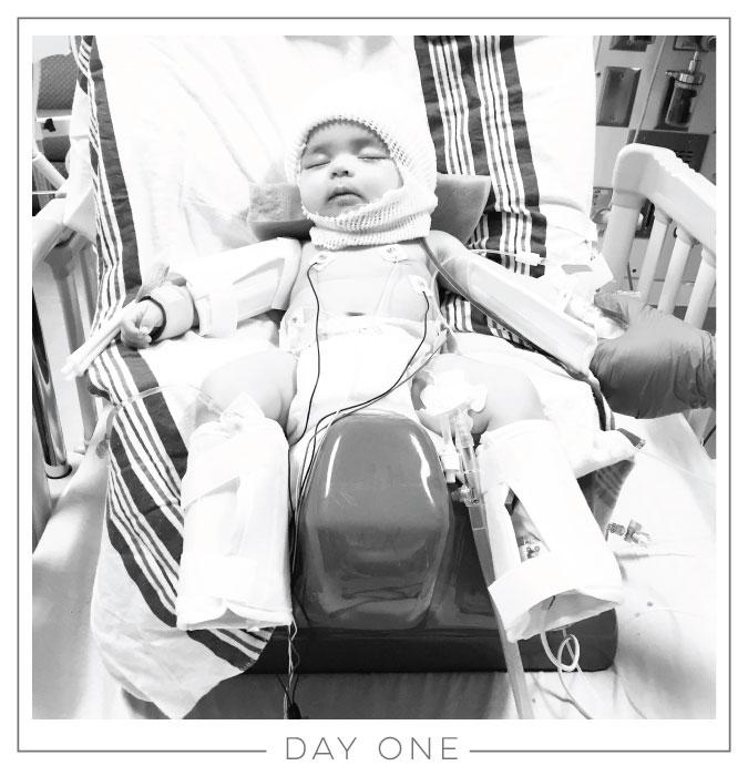 Day One // Craniosynostosis