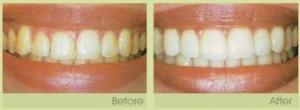 laser-gum-surgery-300x110.jpg
