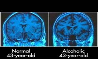 Brain scan showing the literally lacking brain following alcohol addiction. Niacinamide has shown to have strong protective brain health effects, and thus a key nutrient in post-recovery nutrition restoration.