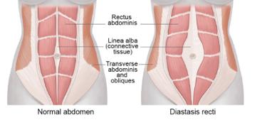 abdomen.jpg