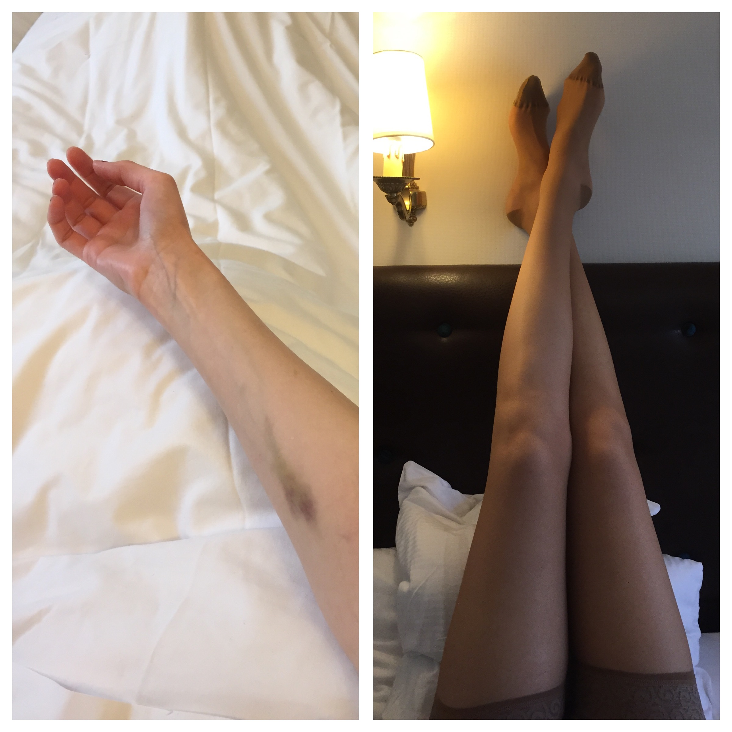 Cannes Bruises & French Medical Grade Compression Stockings