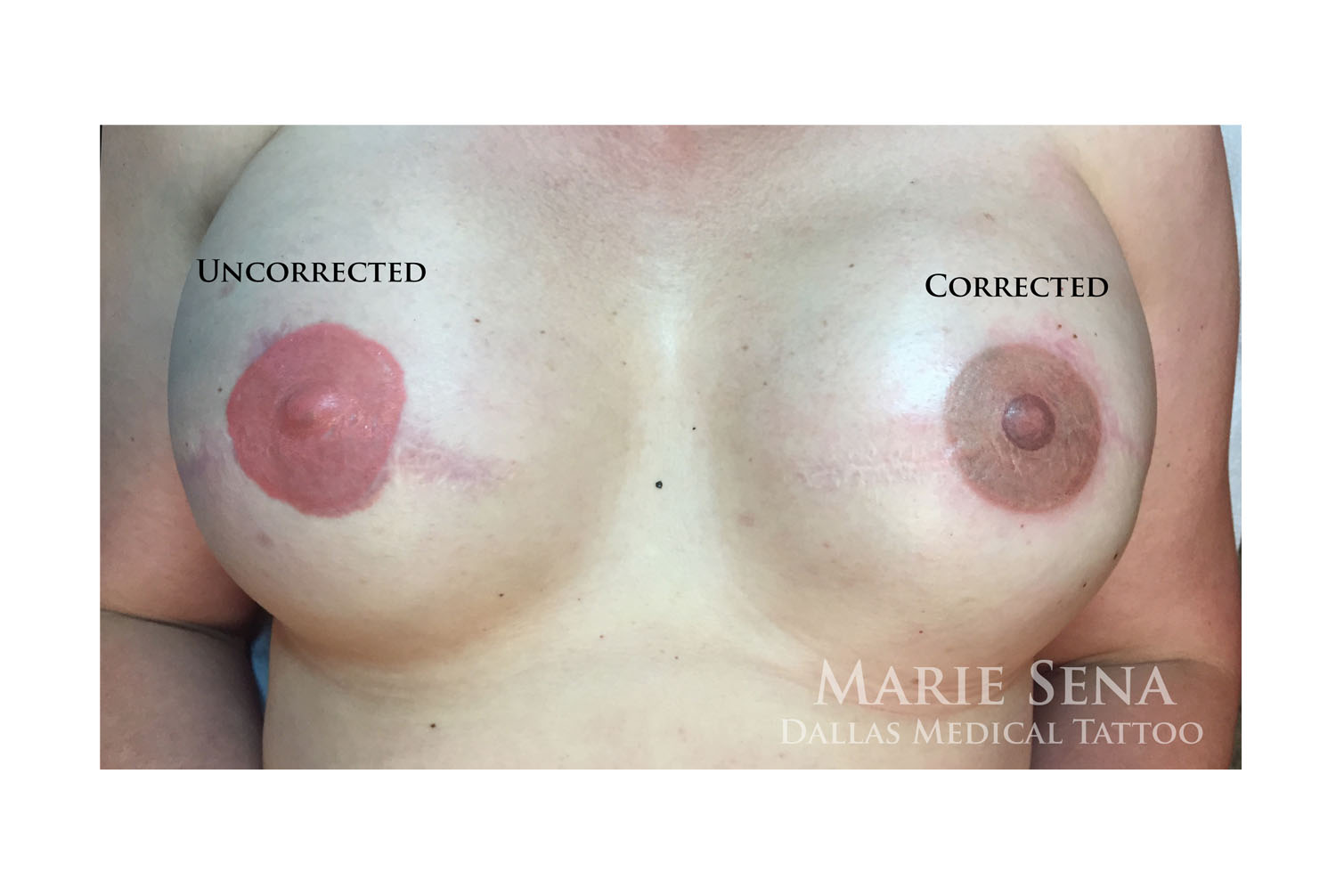 Correcting previously tattooed areolae.  Client's left has been corrected, right has not been corrected yet in order to show the contrast.
