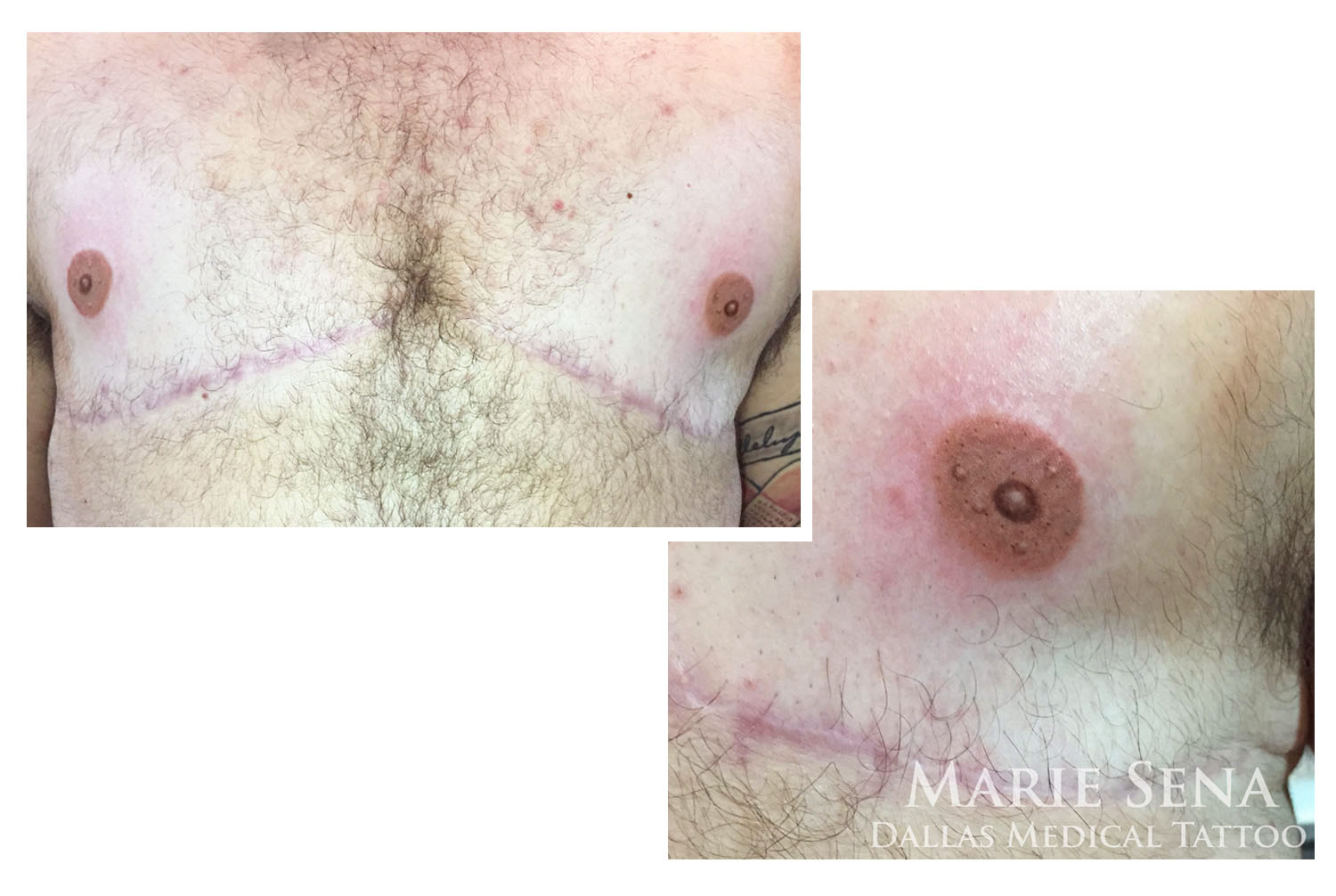 Freshly completed male 3D Areola Tattoo done post-mastectomy as part of transitioning.