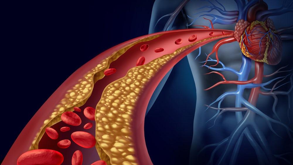 nano-drones-healing-drug-heart-attacks.jpg