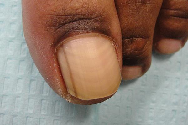 Pre Matrix Shave Nail Biopsy