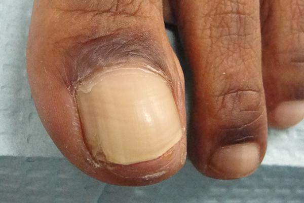 Post Matrix Shave Nail Biopsy
