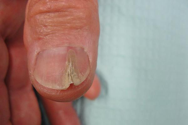Pre Nail Biopsy