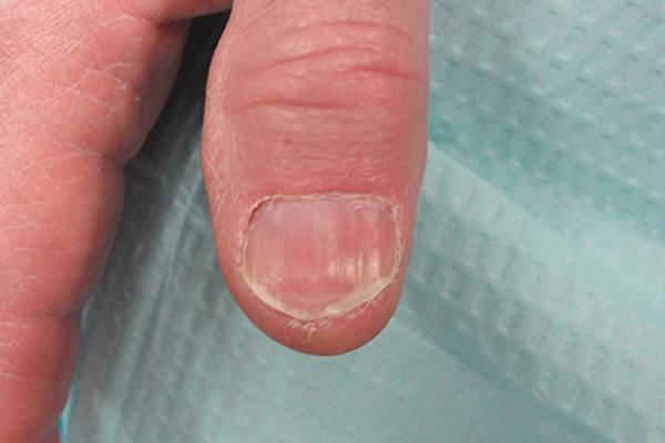 Post Nail Biopsy