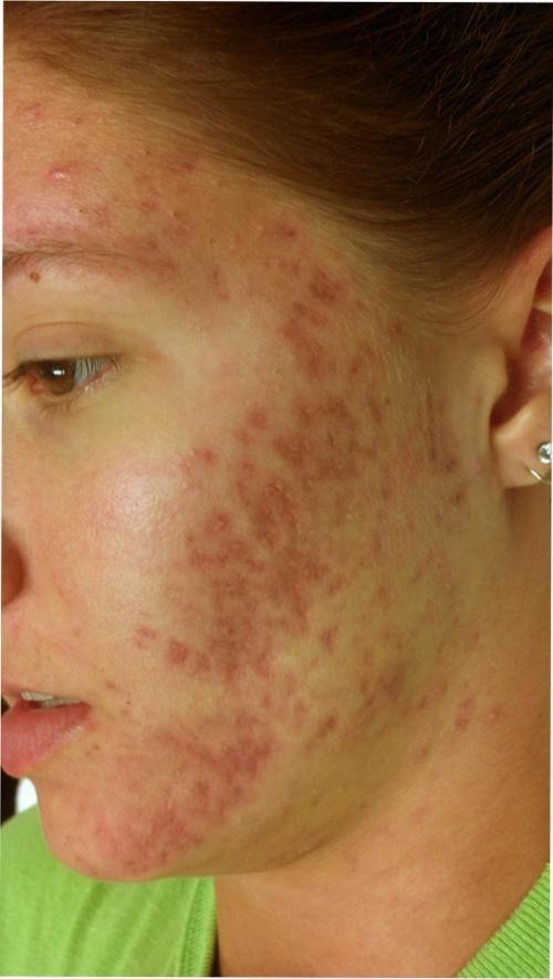bad acne.jpg