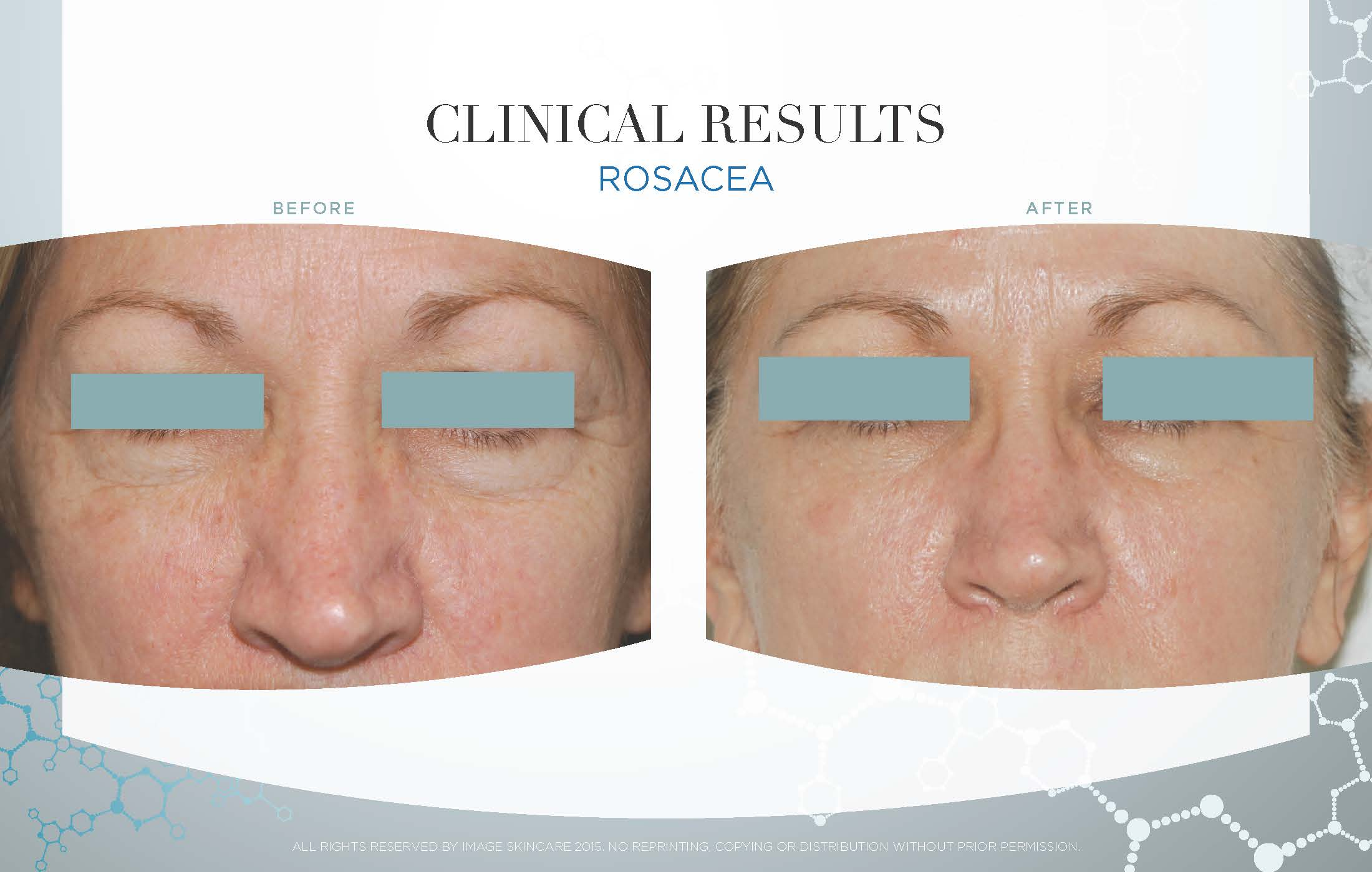 Series of 6 Image Designer Peels: The Signature Facelift and use of Image Skincare at-home regimen.