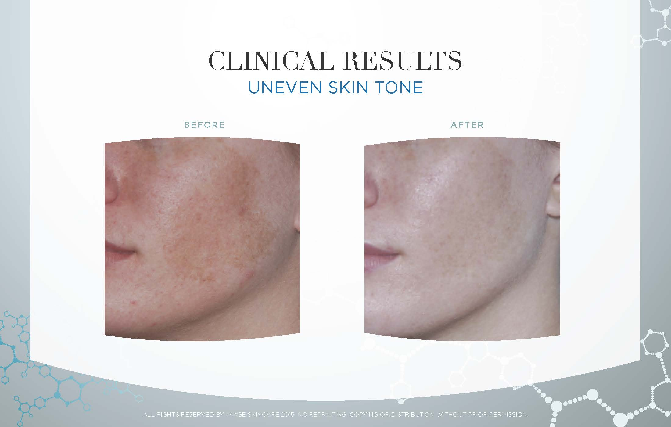 Series of 6 Image Designer Peels: Lightening Lift and use of Image Skincare at-home regimen.