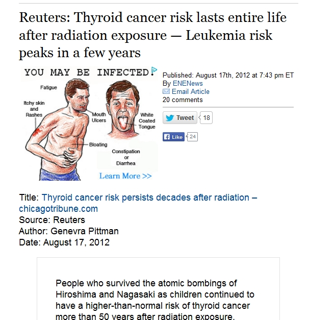 1j Reuters Thyroid cancer risk lasts entire life Leukemia risk peaks in a few years.jpg