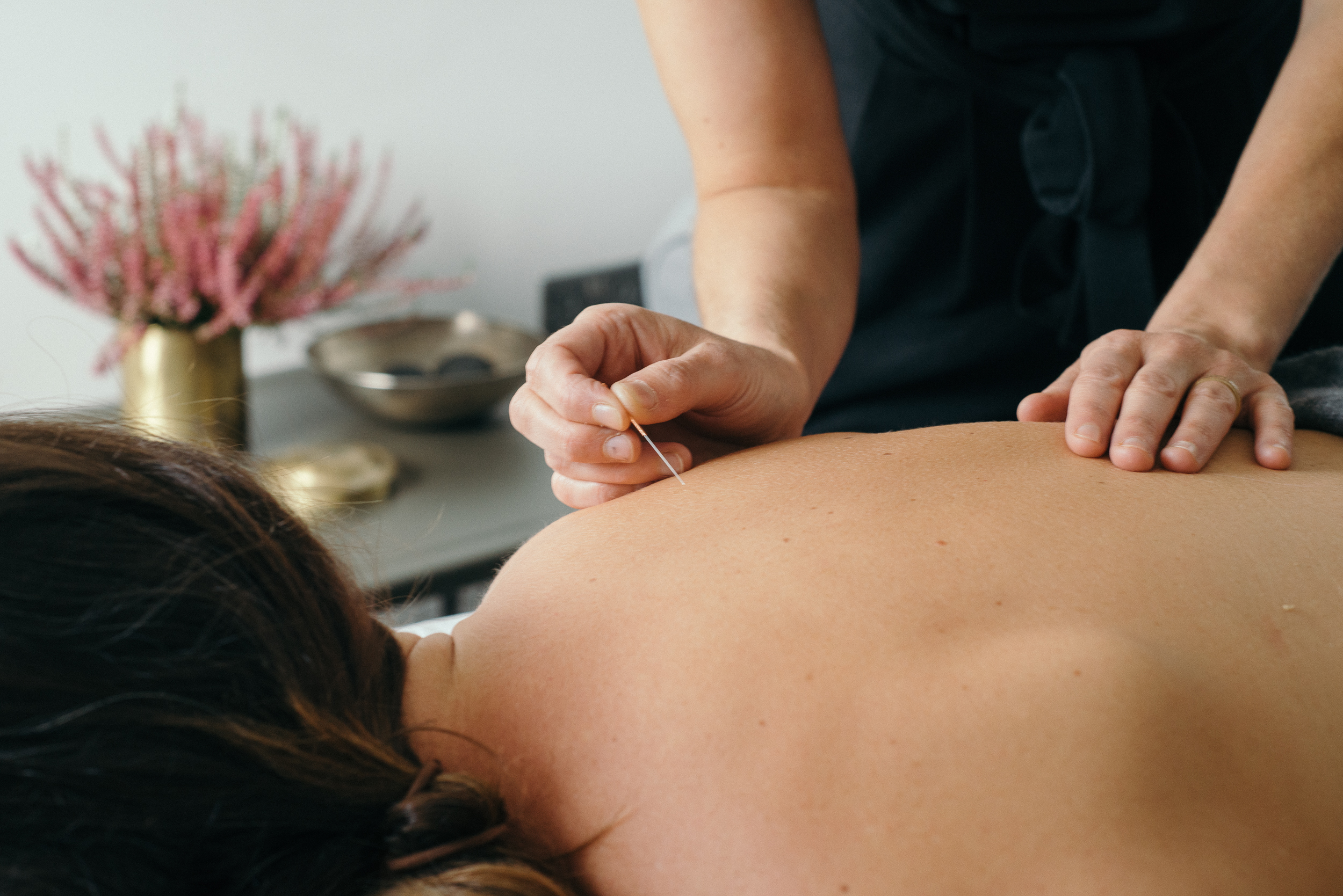 Acupunture Therapist South Hams