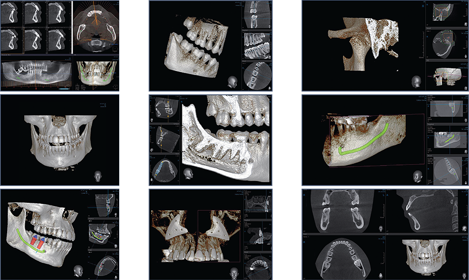 3D CBCT scan will be taken to determine patient's existing dental condition, volume of bone and anatomy.