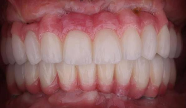 Teeth will be designed to best match patient's facial esthetics. Final zirconia bridge is delivered.